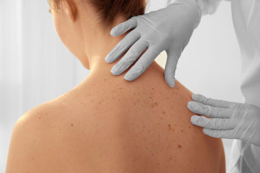 podrażnienie-alergia-kontaktowa-skóry